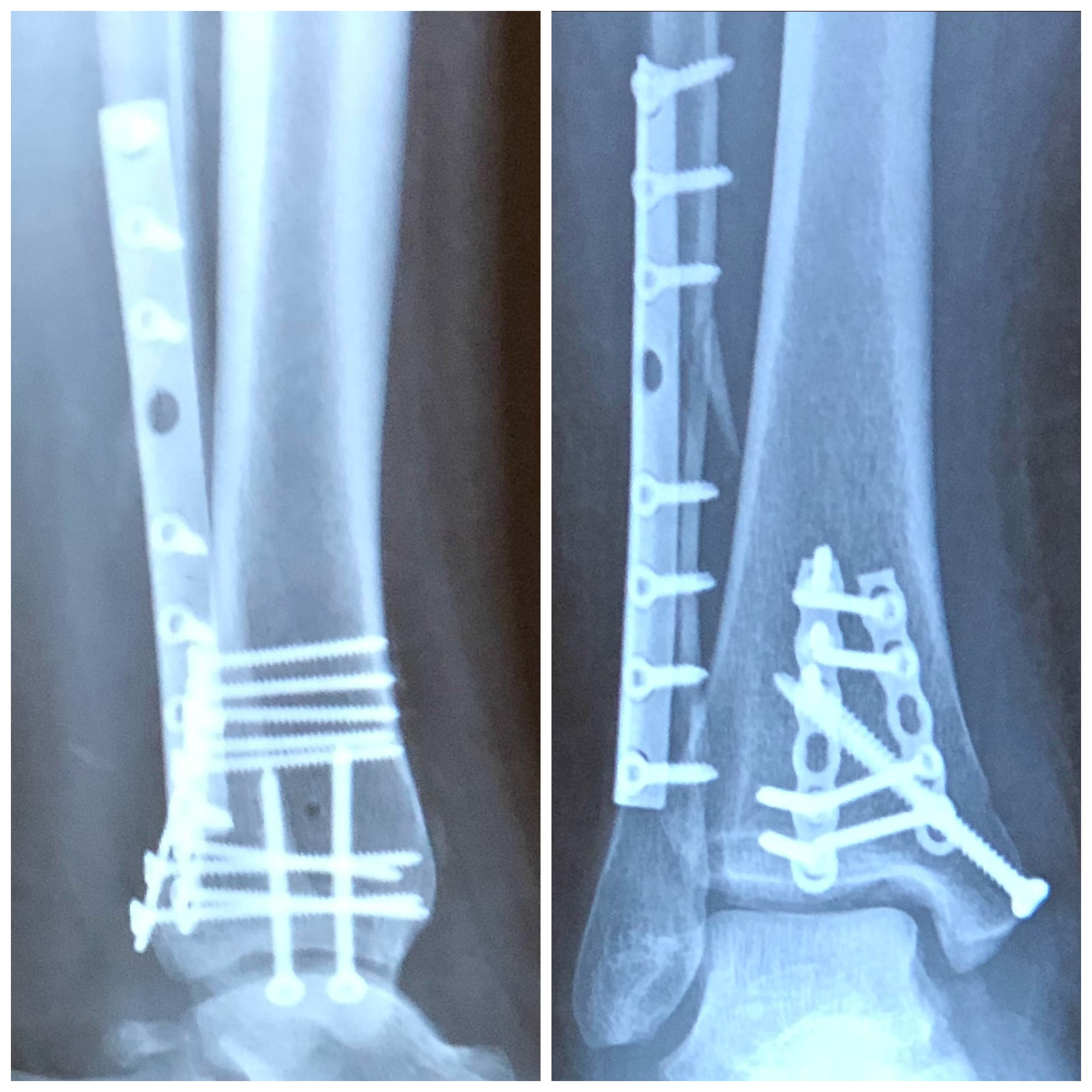 trimalleolar fracture surgery