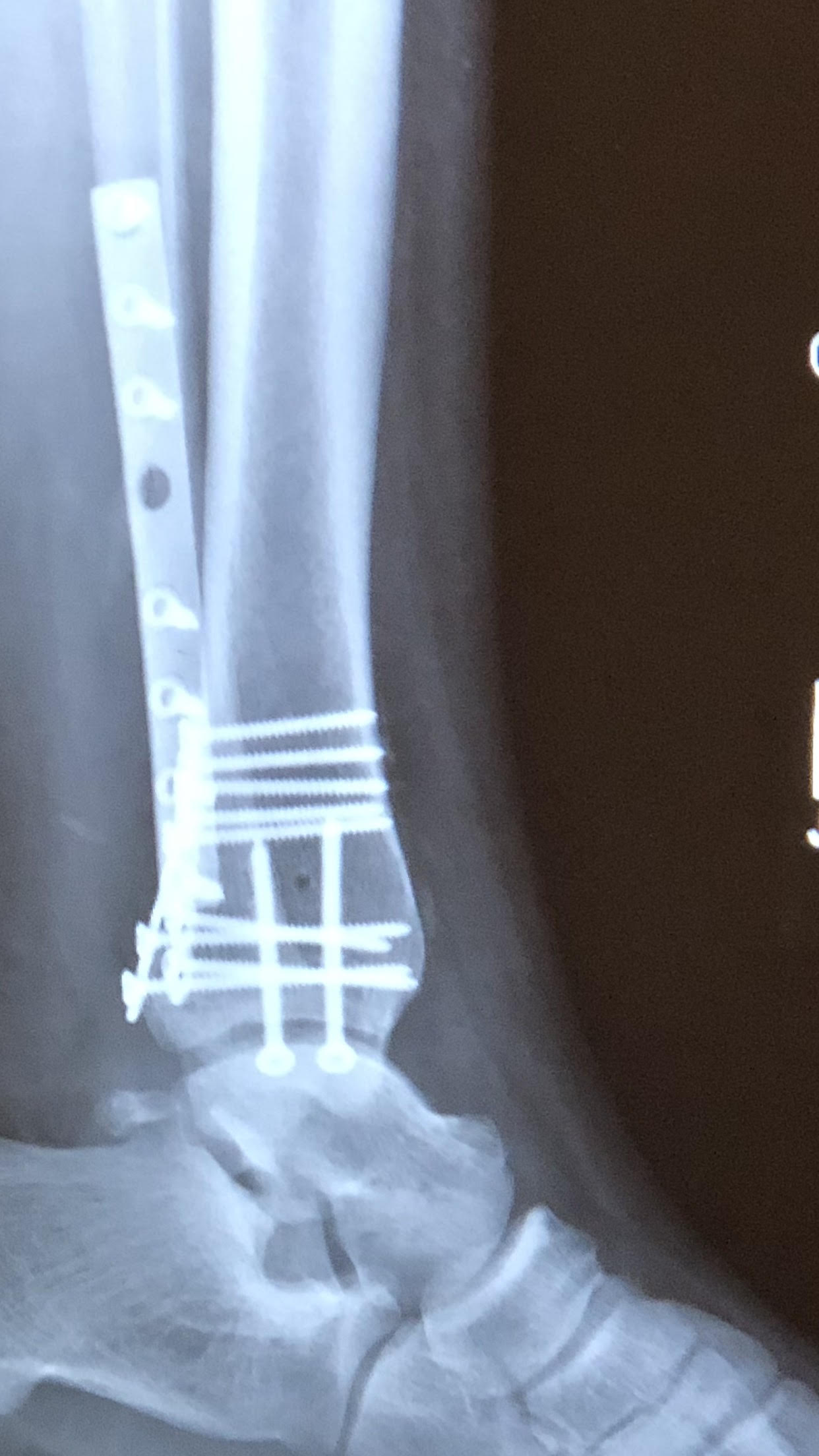 Broken Ankle Surgery Recovery After Trimalleolar Fracture